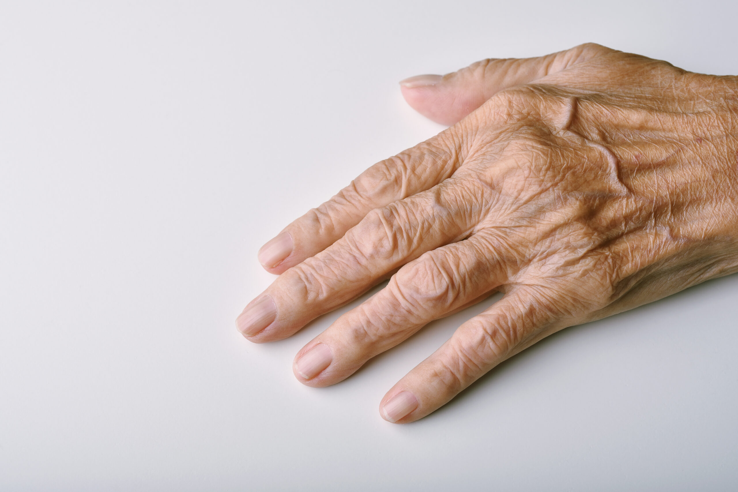 Old woman's deform hands, Finger pain and stiffness from arthritis in senior people, Elderly healthcare concept.